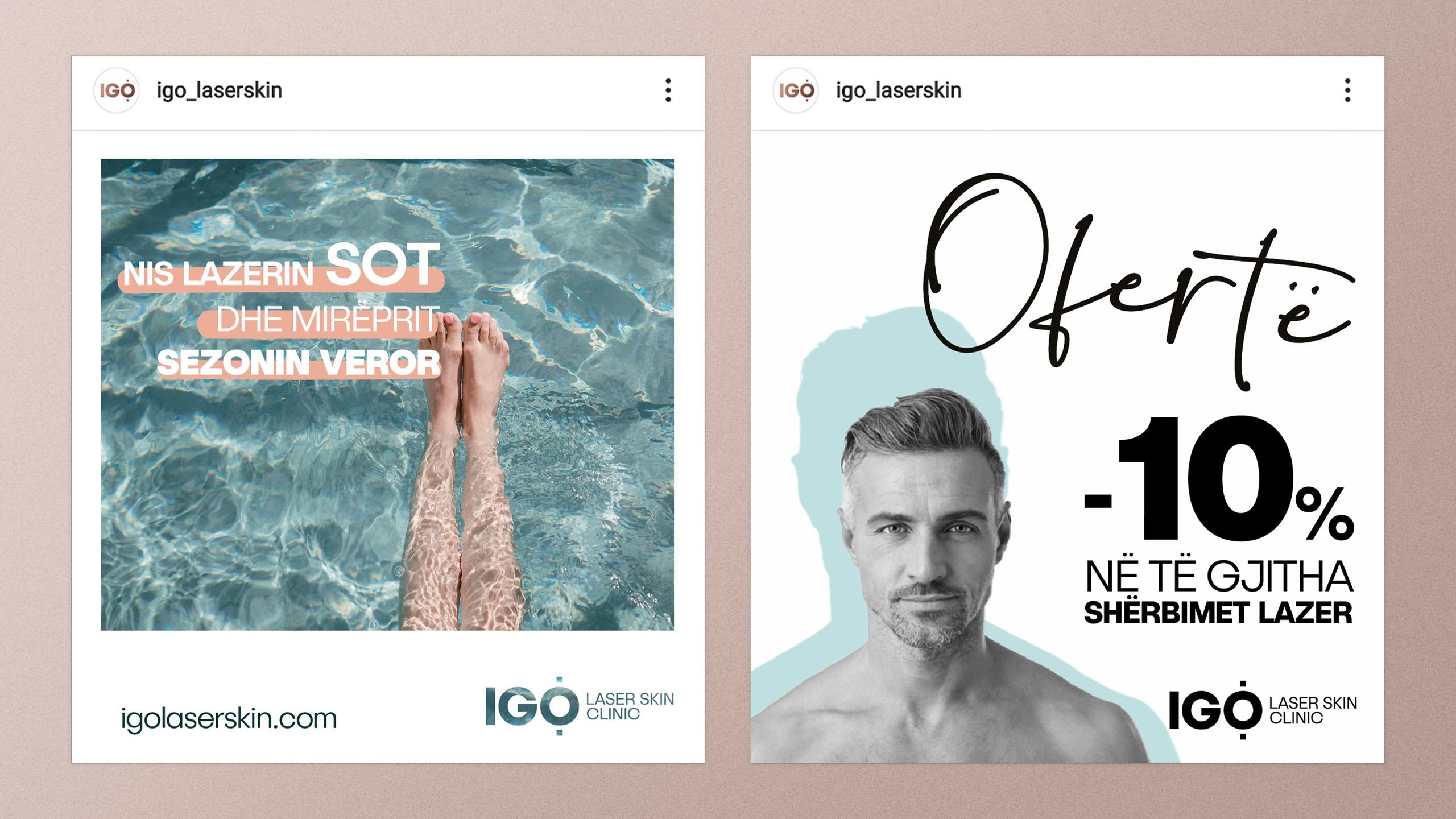 IGO Laser Skin Project Img 3 - Vatra Agency / Founder & CEO Gerton Bejo